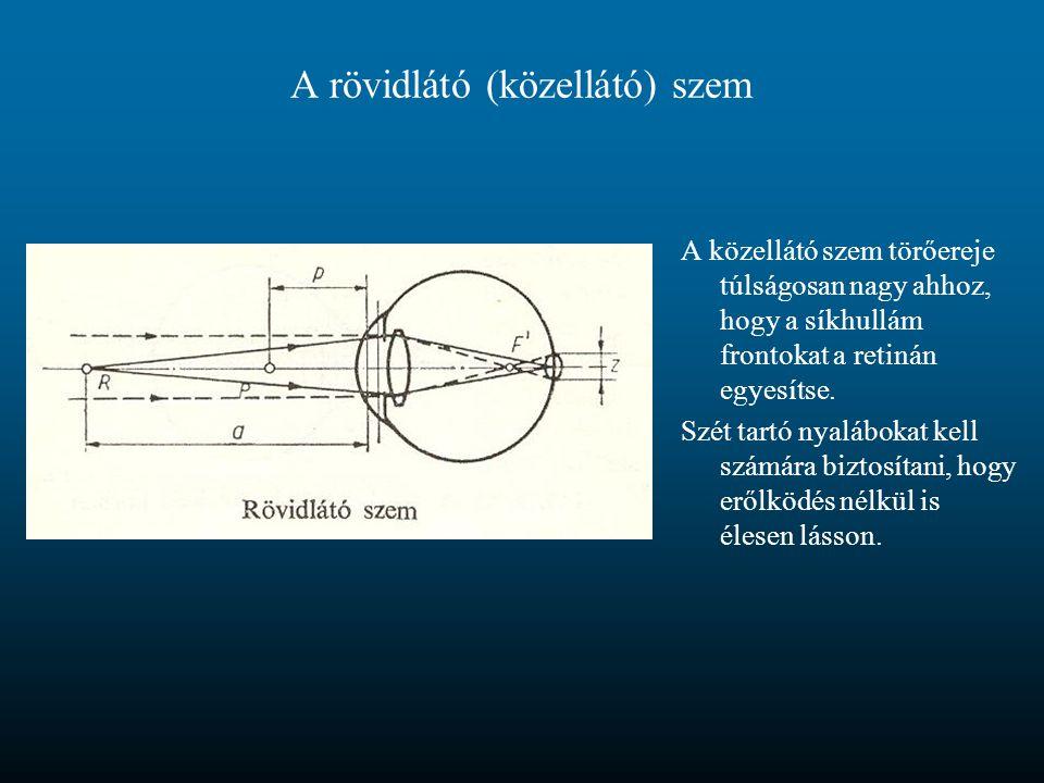 A rövidlátó (közellátó) szem A közellátó szem törőereje túlságosan nagy ahhoz, hogy a síkhullám frontokat a retinán egyesítse. Szét tartó nyalábokat k