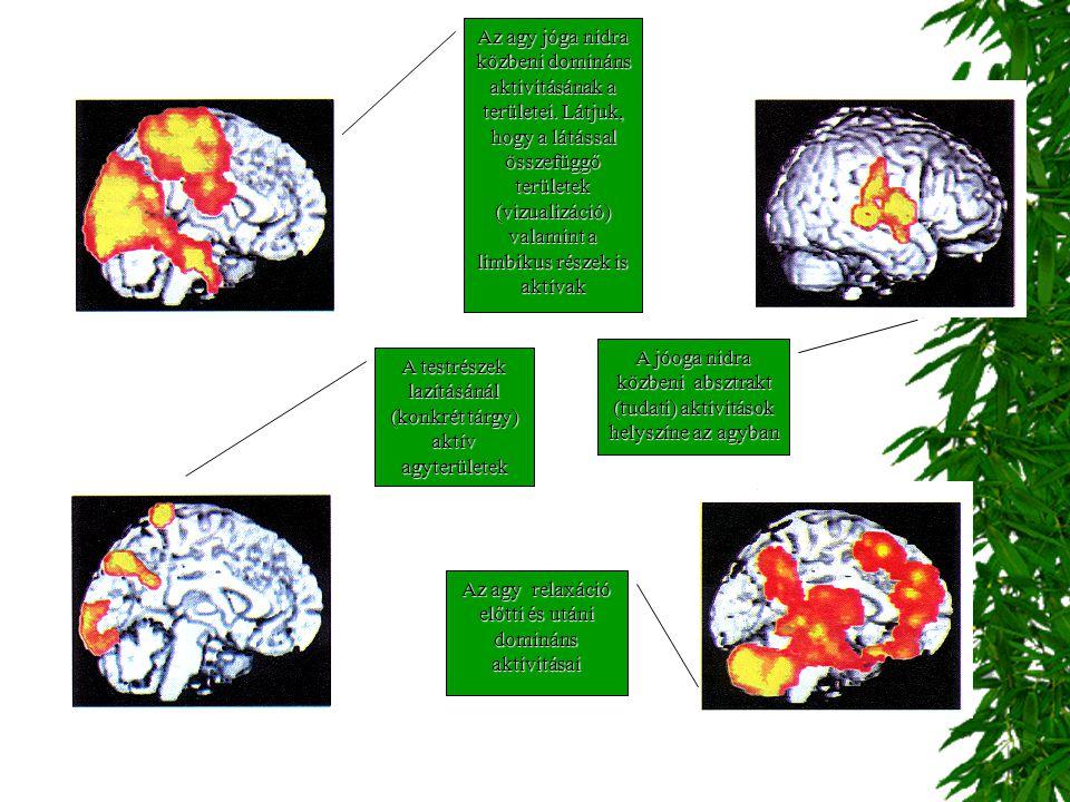 Az agy jóga nidra közbeni domináns aktivitásának a területei. Látjuk, hogy a látással összefüggő területek (vizualizáció) valamint a limbikus részek i