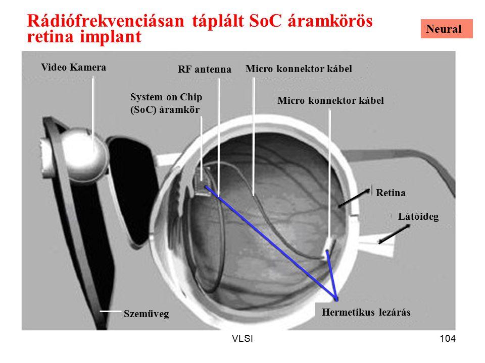 VLSI104 Rádiófrekvenciásan táplált SoC áramkörös retina implant Micro konnektor kábel Video Kamera Retina Látóideg Hermetikus lezárás RF antenna System on Chip (SoC) áramkör Szemüveg Neural