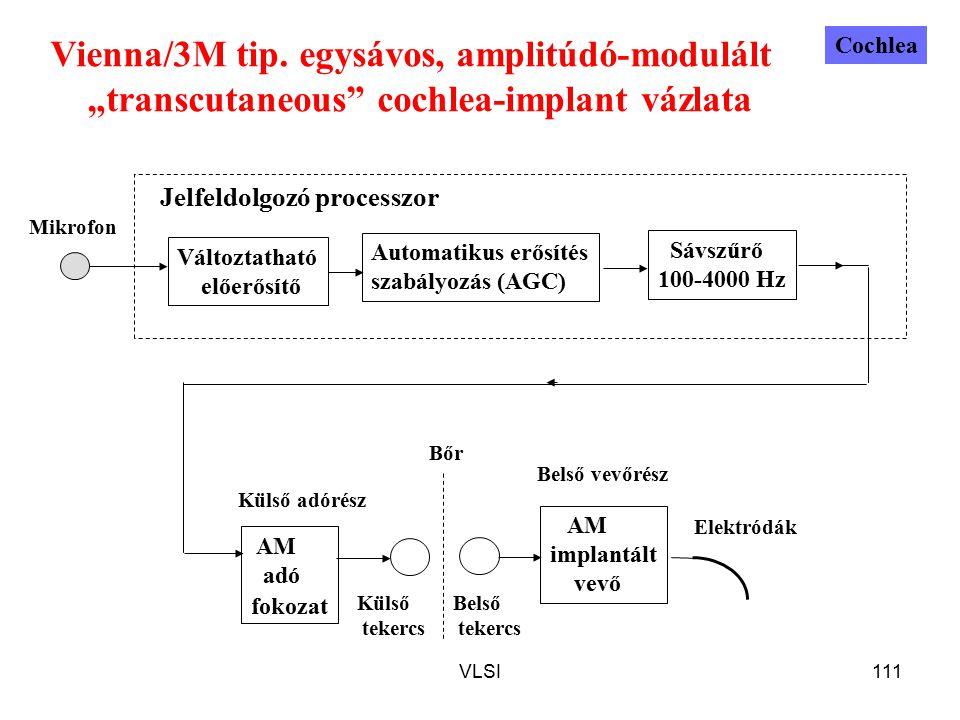 """VLSI111 Vienna/3M tip. egysávos, amplitúdó-modulált """"transcutaneous"""" cochlea-implant vázlata AM adó fokozat AM implantált vevő Mikrofon Külső adórész"""