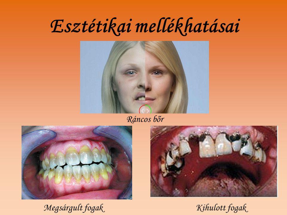 Esztétikai mellékhatásai Kihulott fogak Ráncos bőr Megsárgult fogak