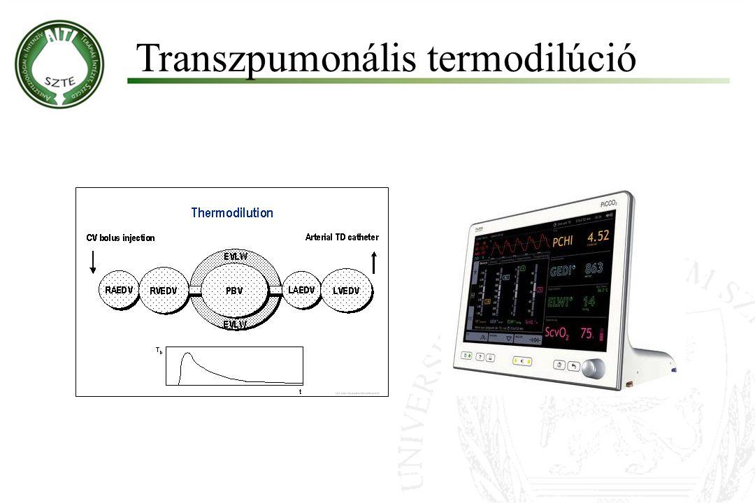 Molnár '99 Transzpumonális termodilúció