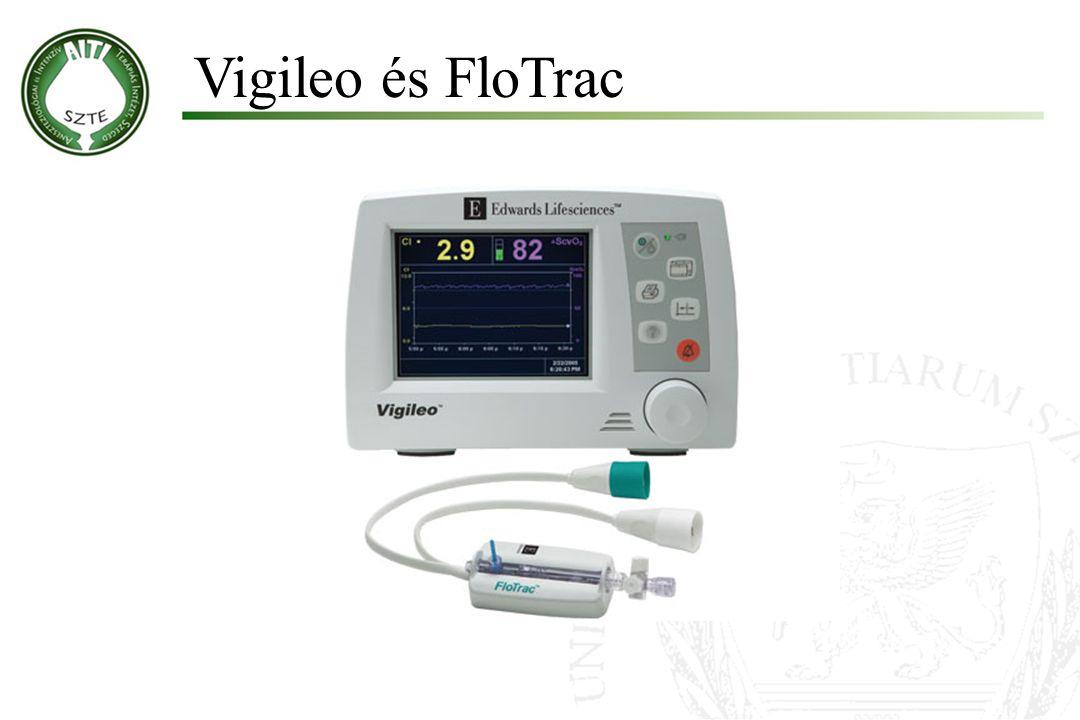 Molnár '99 Vigileo és FloTrac