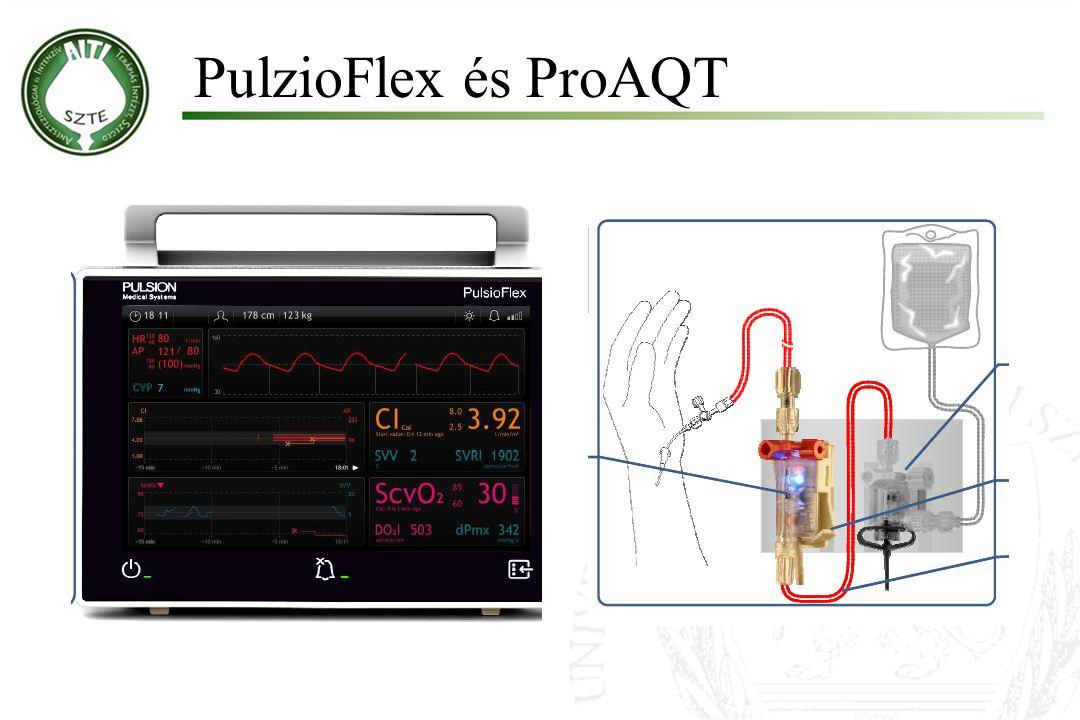 Molnár '99 PulzioFlex és ProAQT