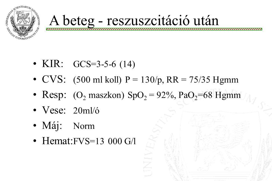 KIR: GCS=3-5-6 (14) CVS: (500 ml koll) P = 130/p, RR = 75/35 Hgmm Resp: (O 2 maszkon) SpO 2 = 92%, PaO 2 =68 Hgmm Vese: 20ml/ó Máj: Norm Hemat: FVS=13