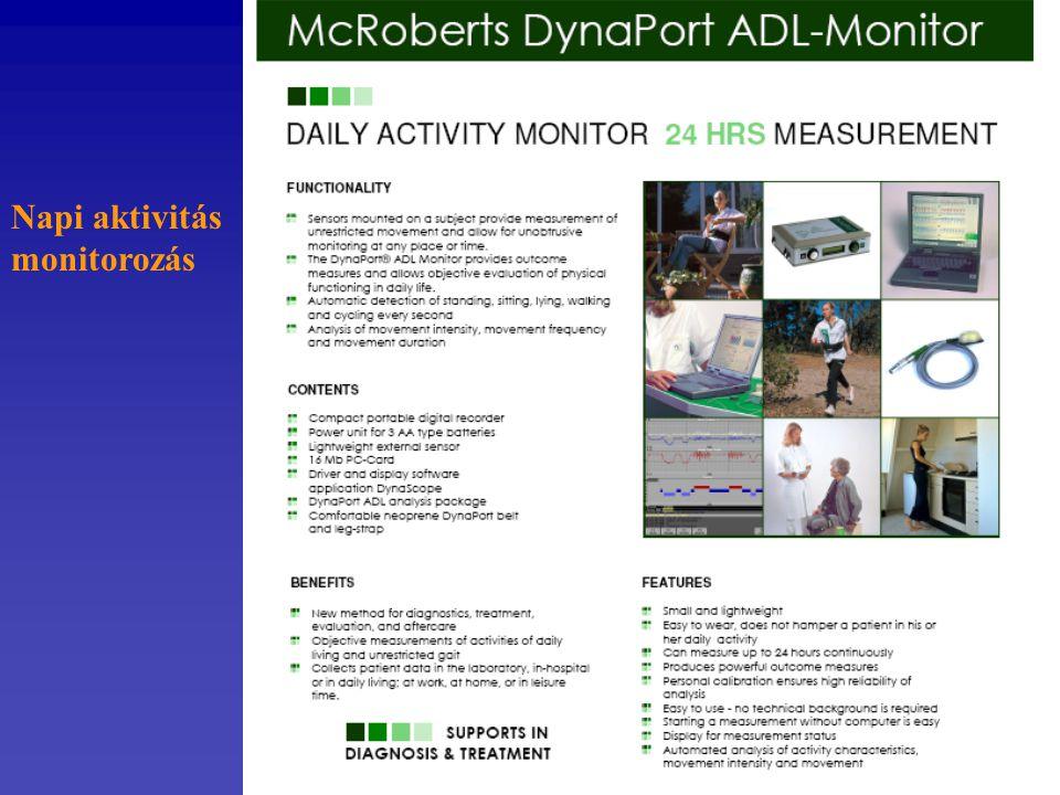 Napi aktivitás monitorozás