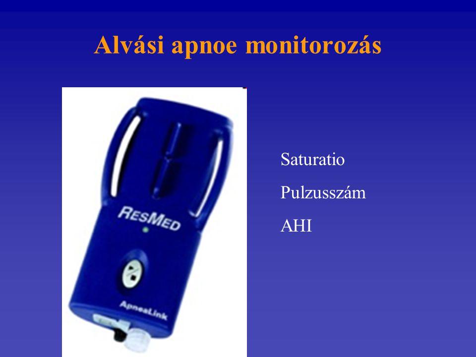 Alvási apnoe monitorozás Saturatio Pulzusszám AHI