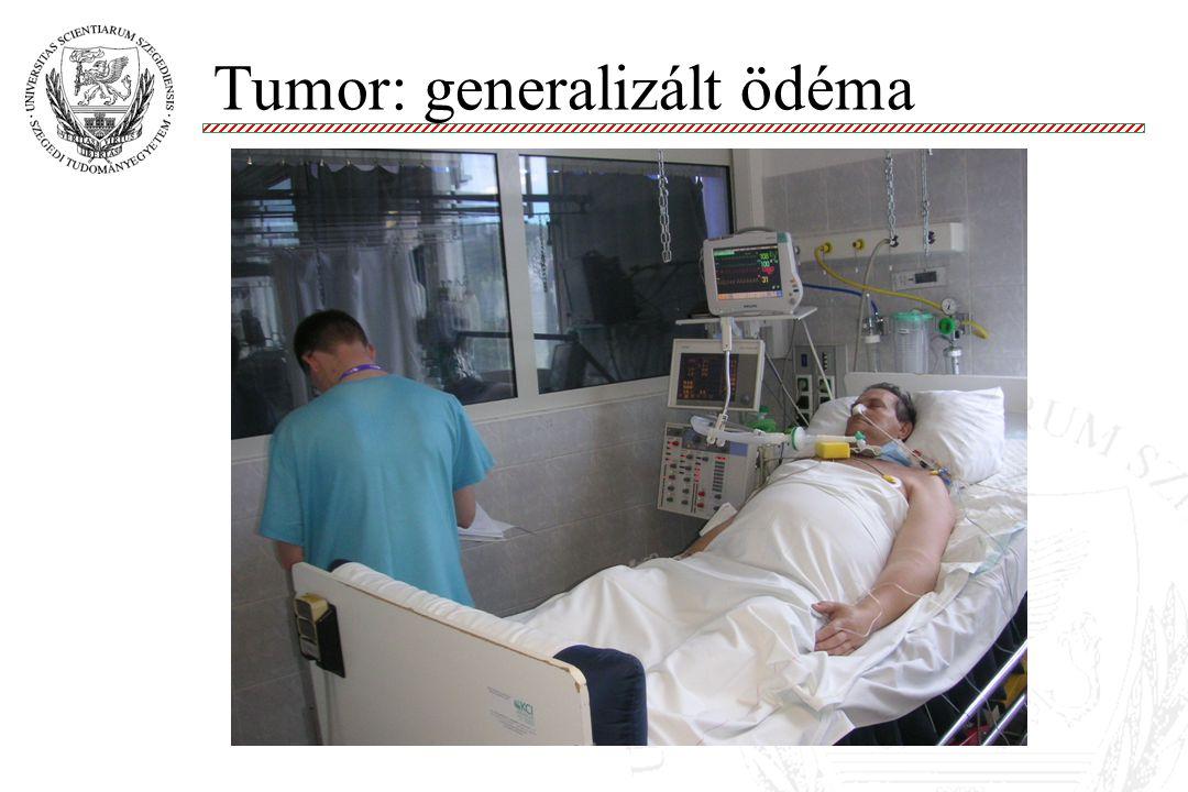 Tumor: generalizált ödéma