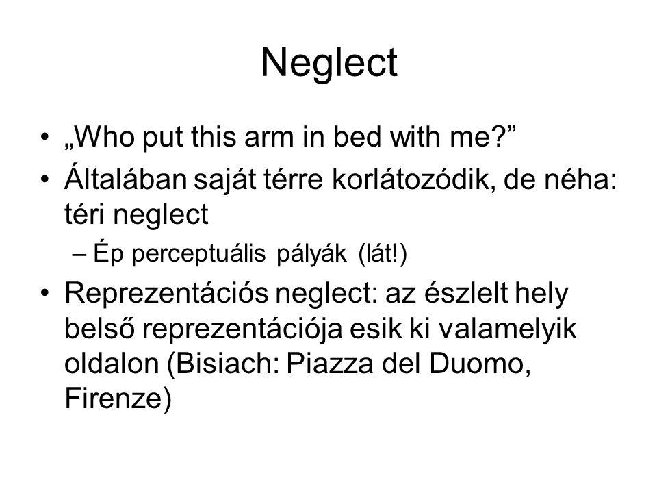 """Neglect """"Who put this arm in bed with me?"""" Általában saját térre korlátozódik, de néha: téri neglect –Ép perceptuális pályák (lát!) Reprezentációs neg"""