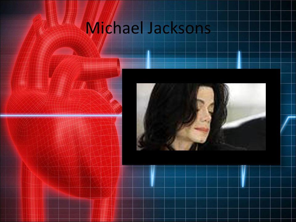 Michael Jacksons