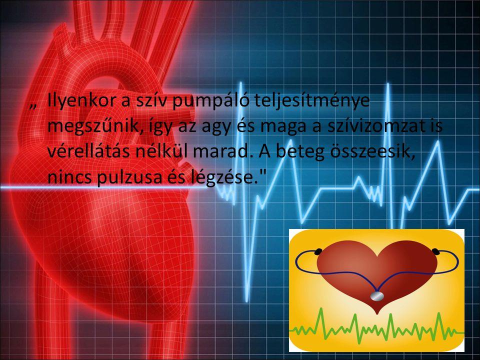Hirtelen szívhalál Hirtelen szívhalálnak nevezzük azt a szíveredetű halált, ahol a tünetek fellépése és a halál bekövetkezése között maximálisan egy óra telik el.