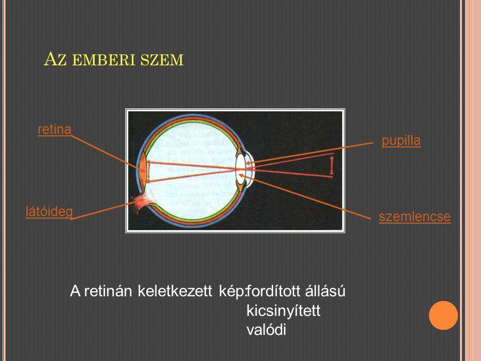 A Z EMBERI SZEM retina látóideg pupilla szemlencse A retinán keletkezett kép: fordított állású kicsinyített valódi