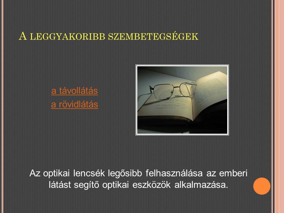 A LEGGYAKORIBB SZEMBETEGSÉGEK Az optikai lencsék legősibb felhasználása az emberi látást segítő optikai eszközök alkalmazása.