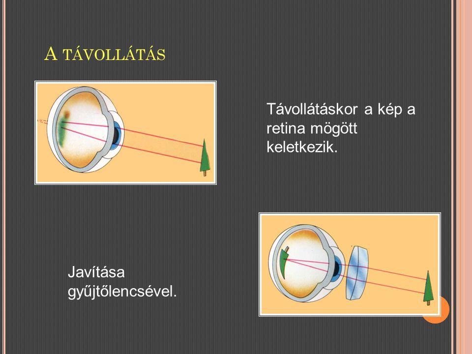 A TÁVOLLÁTÁS Javítása gyűjtőlencsével. Távollátáskor a kép a retina mögött keletkezik.