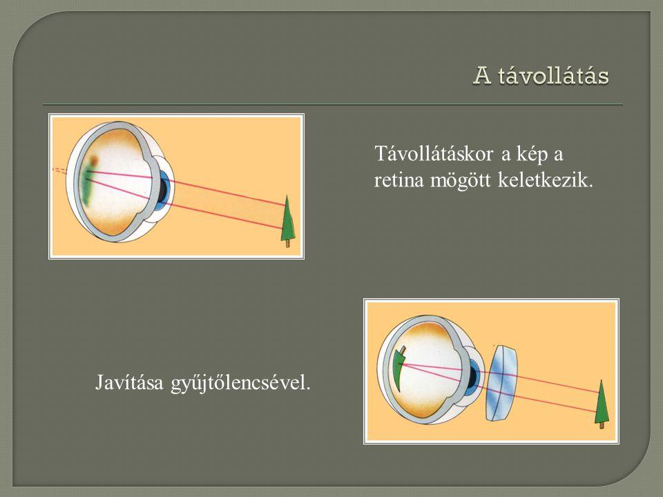 Javítása gyűjtőlencsével. Távollátáskor a kép a retina mögött keletkezik.