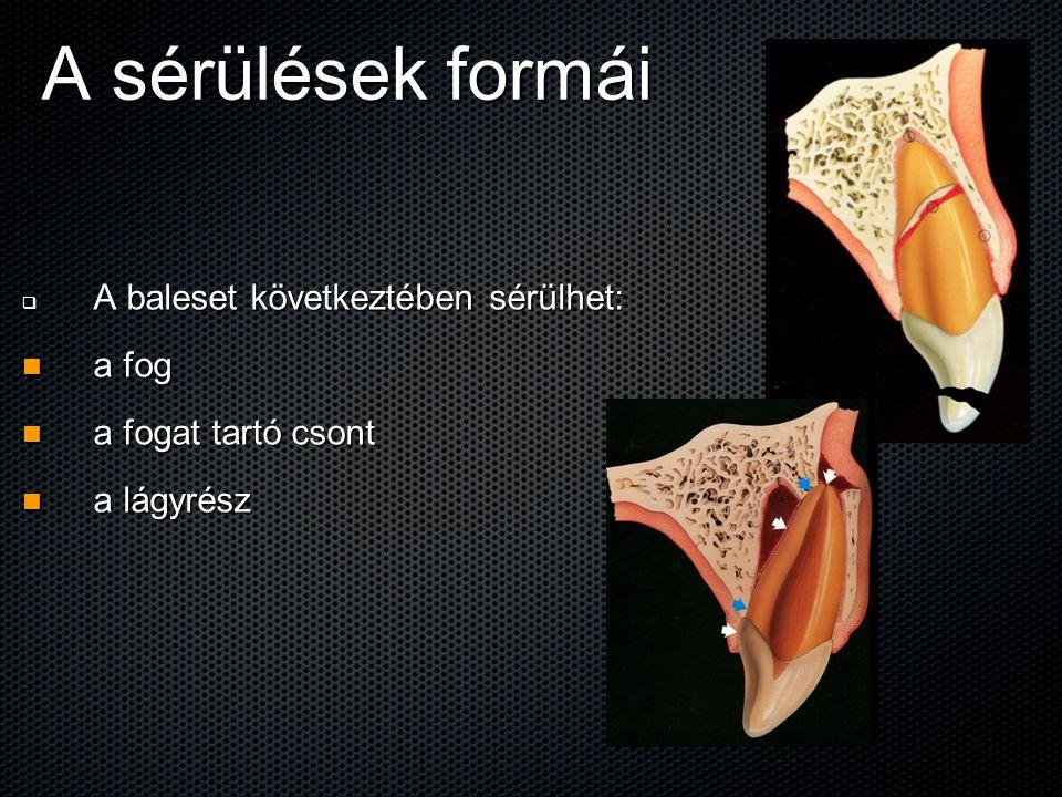 A sérülések formái  A baleset következtében sérülhet: a fog a fog a fogat tartó csont a fogat tartó csont a lágyrész a lágyrész