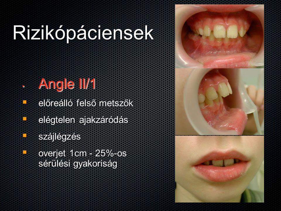 Rizikópáciensek Angle II/1 Angle II/1  előreálló felső metszők  elégtelen ajakzáródás  szájlégzés  overjet 1cm - 25%-os sérülési gyakoriság