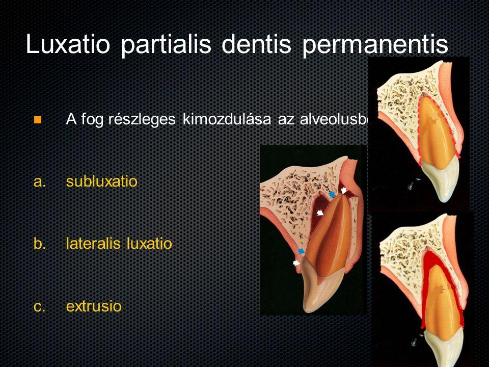 Luxatio partialis dentis permanentis A fog részleges kimozdulása az alveolusból a. a. subluxatio b. b. lateralis luxatio c. c. extrusio