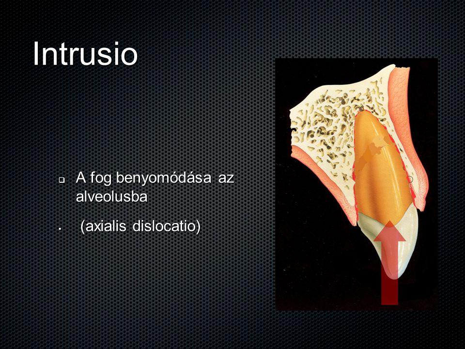 Intrusio  A fog benyomódása az alveolusba (axialis dislocatio) (axialis dislocatio)