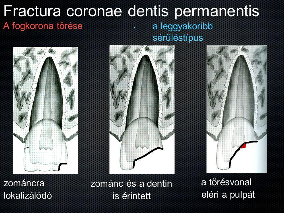 Fractura coronae dentis permanentis A fogkorona törése a leggyakoribb sérüléstípus zománcralokalizálódó zománc és a dentin is érintett a törésvonal el