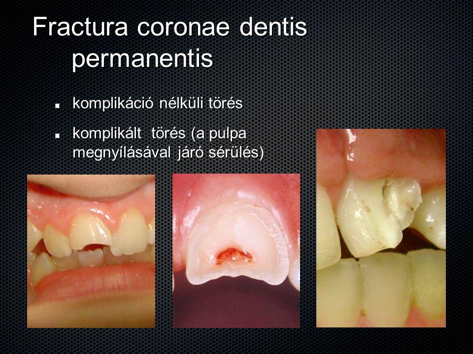 Fractura coronae dentis permanentis komplikáció nélküli törés komplikált törés (a pulpa megnyílásával járó sérülés)