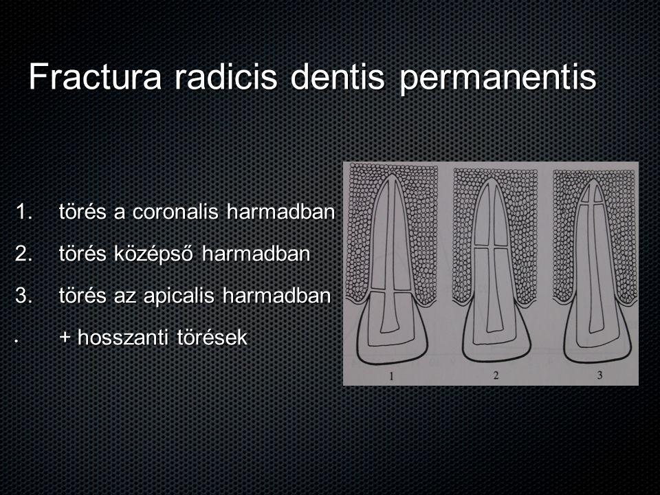 Fractura radicis dentis permanentis 1. törés a coronalis harmadban 2. törés középső harmadban 3. törés az apicalis harmadban + hosszanti törések + hos