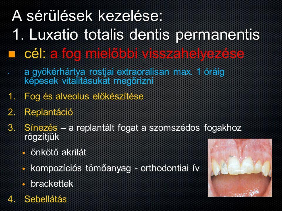 A sérülések kezelése: 1. Luxatio totalis dentis permanentis cél: a fog mielőbbi visszahelyezése a gyökérhártya rostjai extraoralisan max. 1 óráig képe