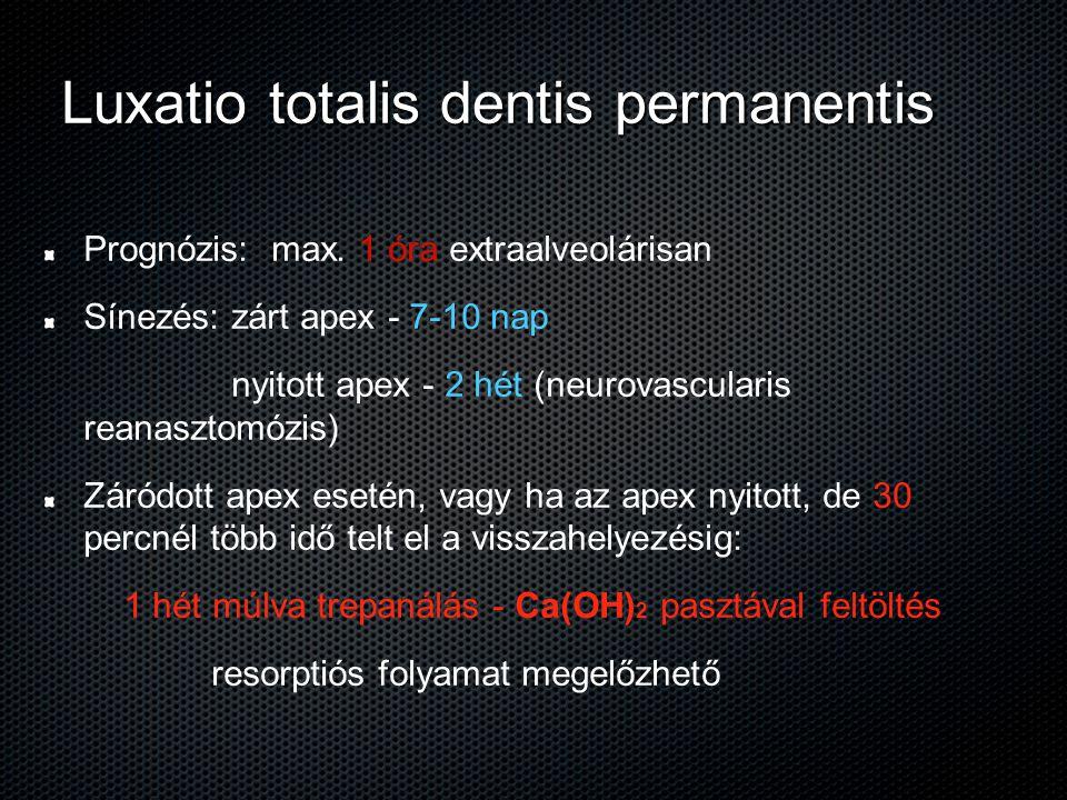 Luxatio totalis dentis permanentis Prognózis: max. 1 óra extraalveolárisan Sínezés: zárt apex - 7-10 nap nyitott apex - 2 hét (neurovascularis reanasz