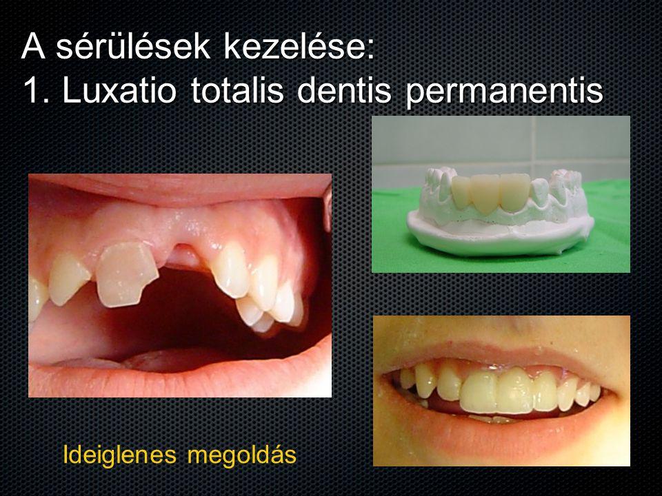 A sérülések kezelése: 1. Luxatio totalis dentis permanentis Ideiglenes megoldás