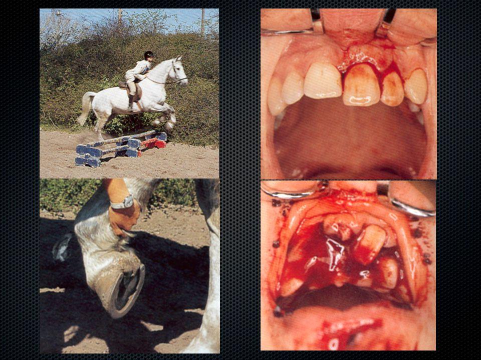Baleseti sérüléseket követő szövődmények  Parodontális szövetek  Felületi resorptio  Csak a gyökérhártyához legközelebbi cement sérül  Macrophagok, osteoclastok  Concussio vagy lateralis luxatio után  1 héttel a sérülés után diagnosztizálható