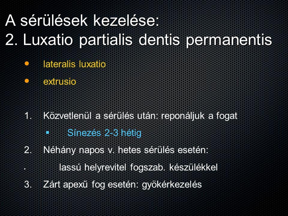 A sérülések kezelése: 2. Luxatio partialis dentis permanentis lateralis luxatio extrusio 1. 1. Közvetlenül a sérülés után: reponáljuk a fogat   Síne