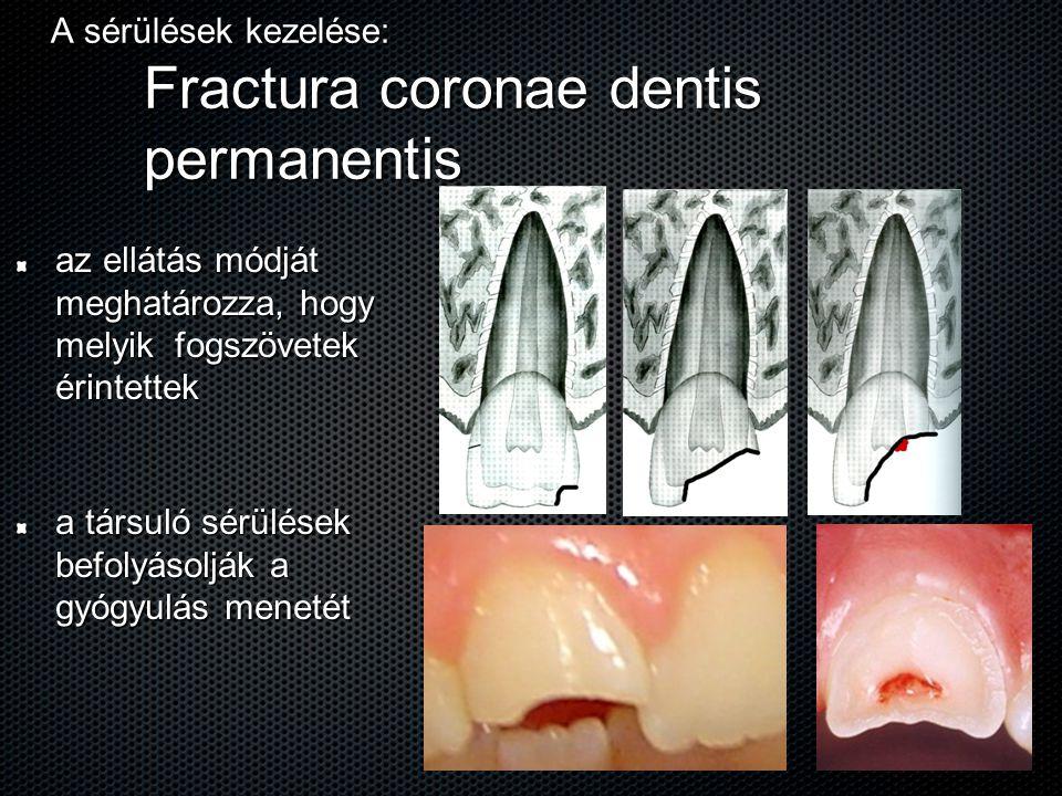 A sérülések kezelése: Fractura coronae dentis permanentis az ellátás módját meghatározza, hogy melyik fogszövetek érintettek a társuló sérülések befol