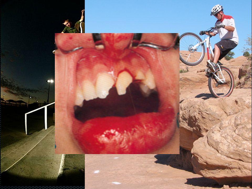 Fractura coronae dentis permanentis A fogkorona törése a leggyakoribb sérüléstípus zománcralokalizálódó zománc és a dentin is érintett a törésvonal eléri a pulpát