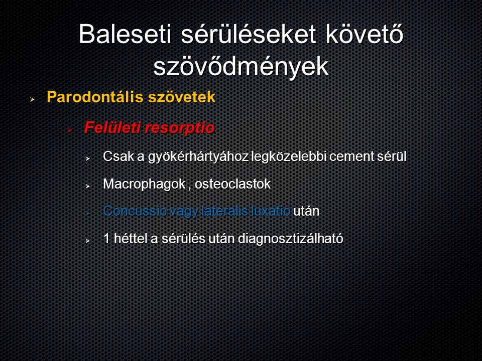 Baleseti sérüléseket követő szövődmények  Parodontális szövetek  Felületi resorptio  Csak a gyökérhártyához legközelebbi cement sérül  Macrophagok