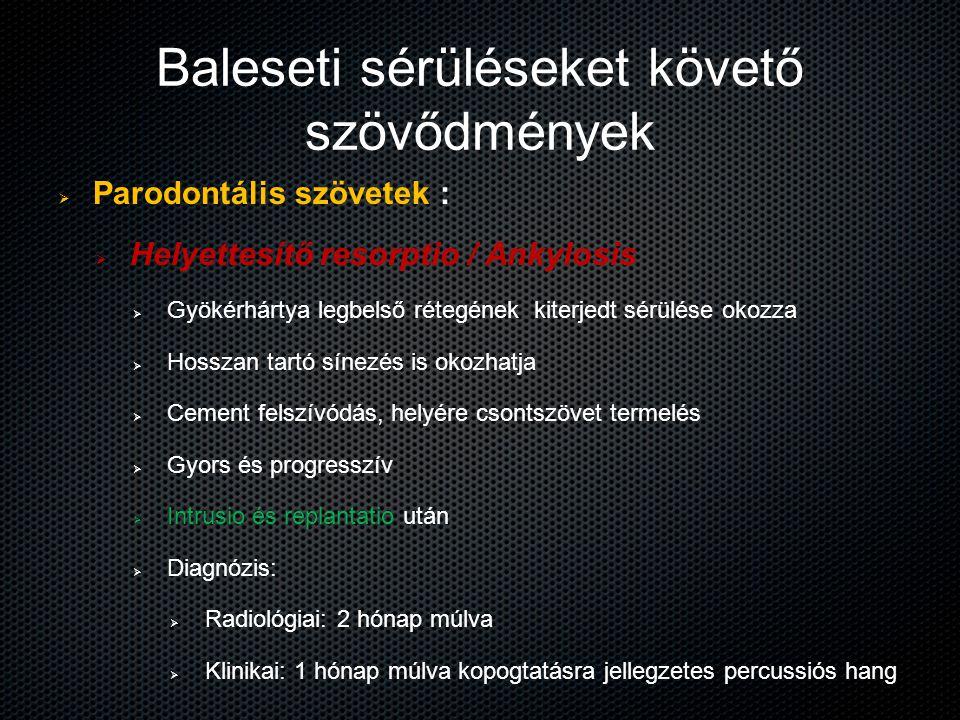 Baleseti sérüléseket követő szövődmények   Parodontális szövetek :   Helyettesítő resorptio / Ankylosis   Gyökérhártya legbelső rétegének kiterj