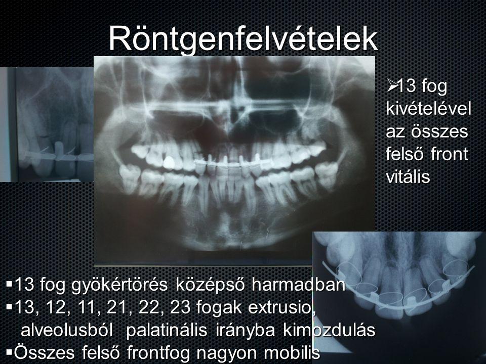 Röntgenfelvételek  13 fog gyökértörés középső harmadban  13, 12, 11, 21, 22, 23 fogak extrusio, alveolusból palatinális irányba kimozdulás alveolusb