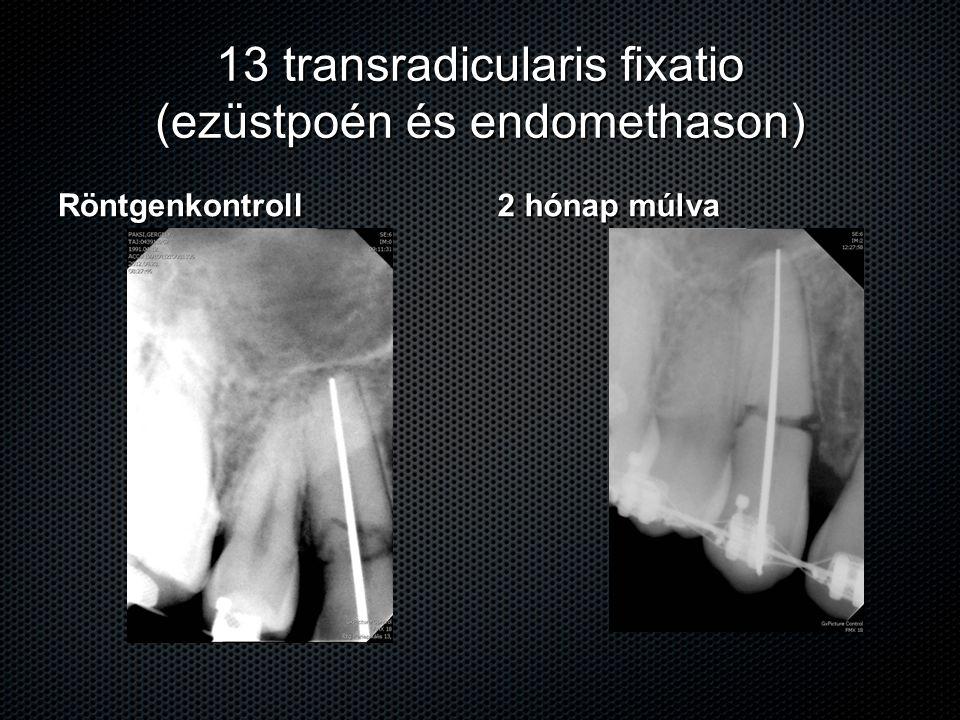 13 transradicularis fixatio (ezüstpoén és endomethason) Röntgenkontroll 2 hónap múlva