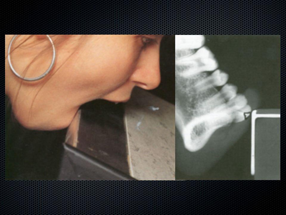 Fractura radicis dentis permanentis A foggyökér törése