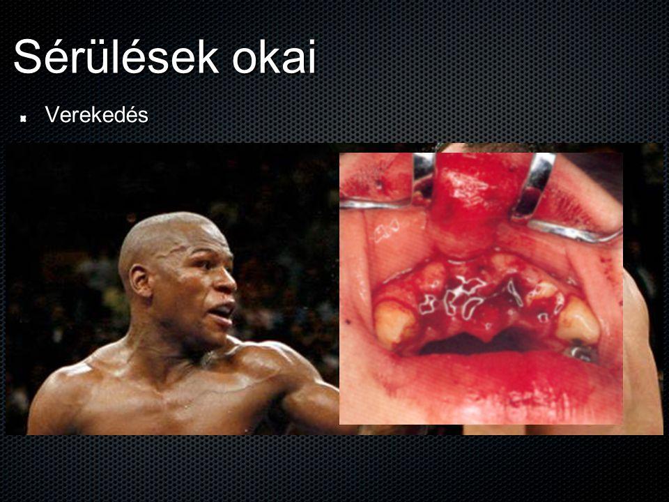 A sérülések kezelése: 2.