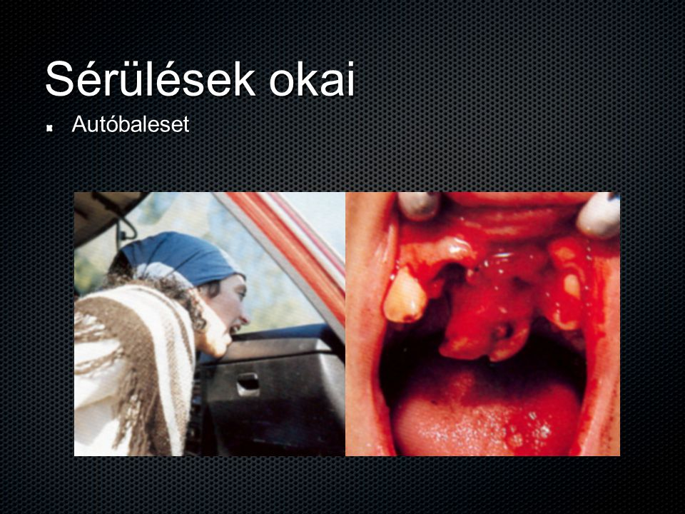 A fogak baleseti sérülésének megelőzése Fogvédők:   konfekcionális v.