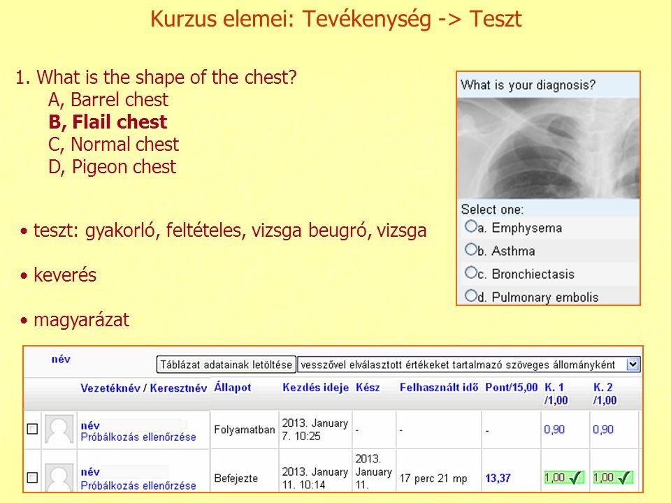 Kurzus elemei: Tevékenység -> Teszt teszt: gyakorló, feltételes, vizsga beugró, vizsga keverés magyarázat 1. What is the shape of the chest? A, Barrel