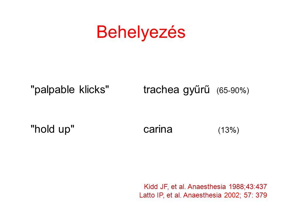 Behelyezés palpable klicks trachea gyűrű (65-90%) hold up carina (13%) Kidd JF, et al.