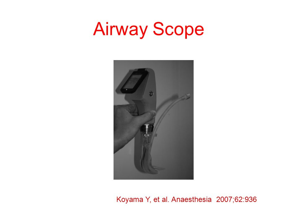 Airway Scope Koyama Y, et al. Anaesthesia 2007;62:936
