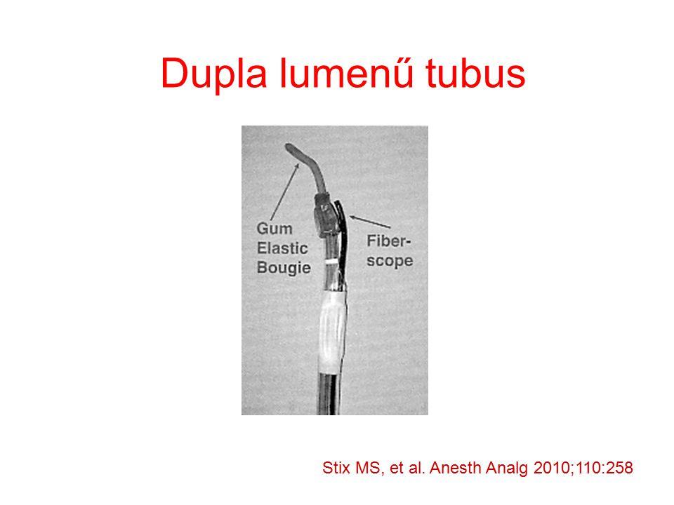 Dupla lumenű tubus Stix MS, et al. Anesth Analg 2010;110:258