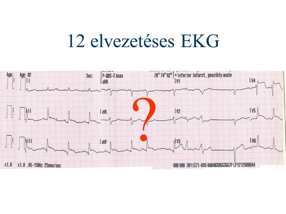 ST elevációval járó akut myocardialis infarktus ellátási irányelv infarktus gyanú esetén az első teendő a 12 elvezetéses EKG készítése valamennyi mentőegység számára javasolt terápiás tevékenység: 500 mg aspirin szétrágása 300 vagy 600 mg clopidogrel adása Kardiológiai Szakmai Kollégium