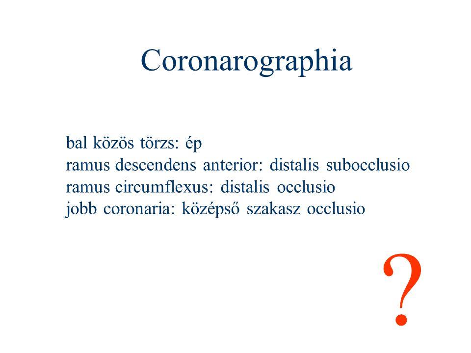 Coronarographia bal közös törzs: ép ramus descendens anterior: distalis subocclusio ramus circumflexus: distalis occlusio jobb coronaria: középső szak
