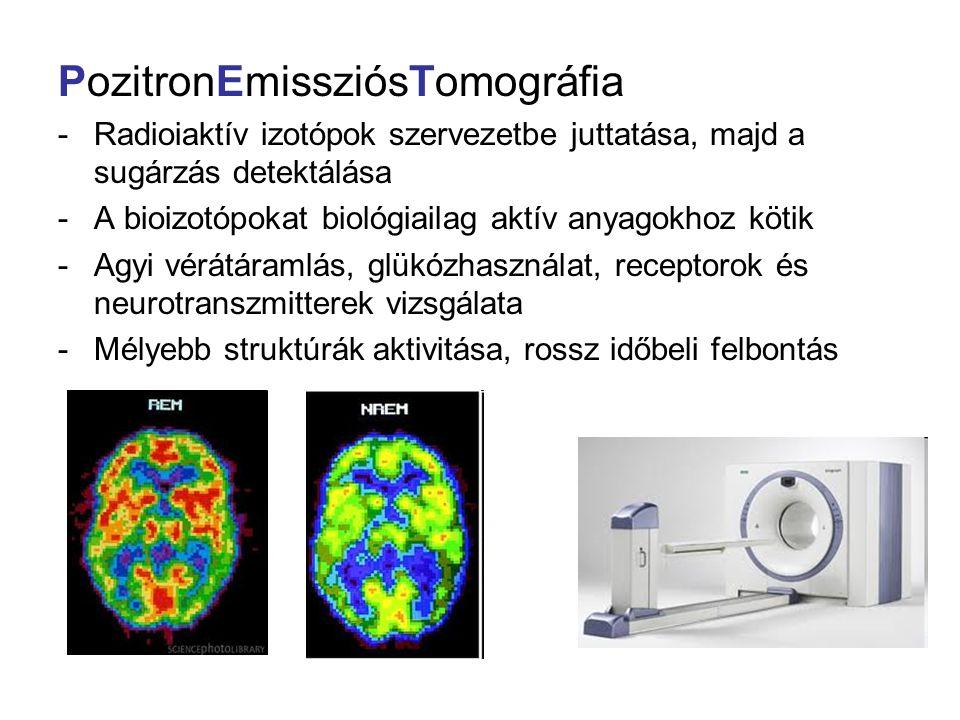 PozitronEmissziósTomográfia -Radioiaktív izotópok szervezetbe juttatása, majd a sugárzás detektálása -A bioizotópokat biológiailag aktív anyagokhoz kö