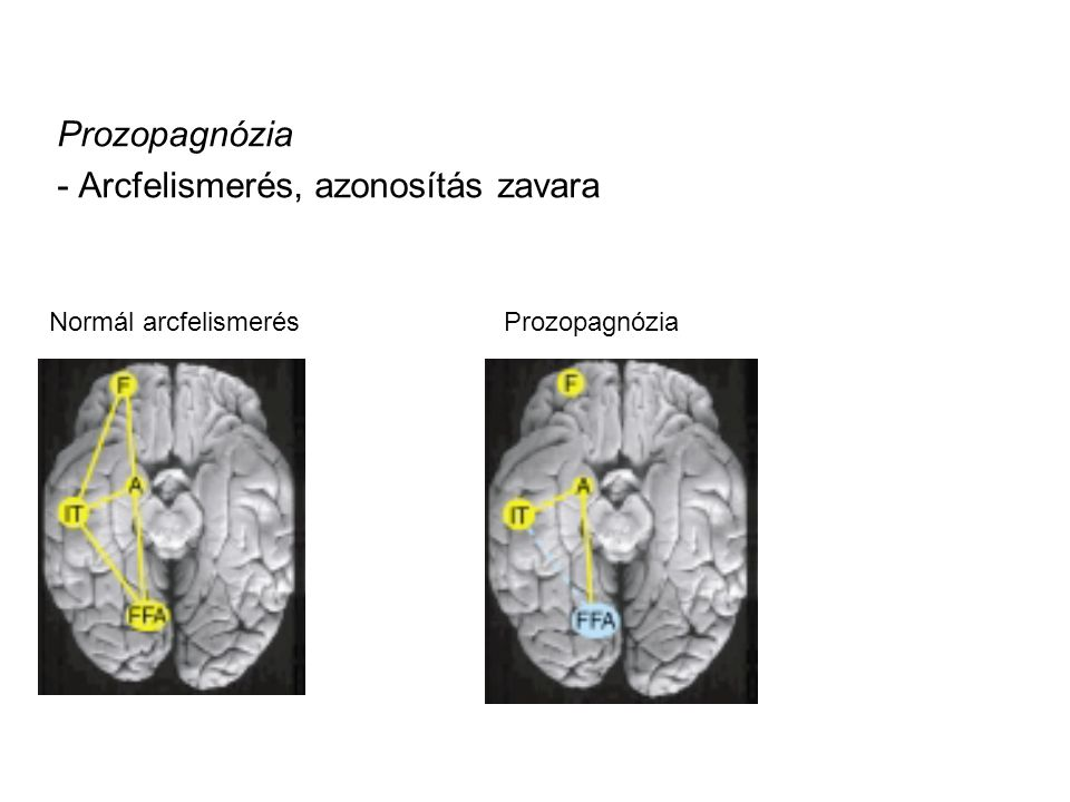 Prozopagnózia - Arcfelismerés, azonosítás zavara ProzopagnóziaNormál arcfelismerés