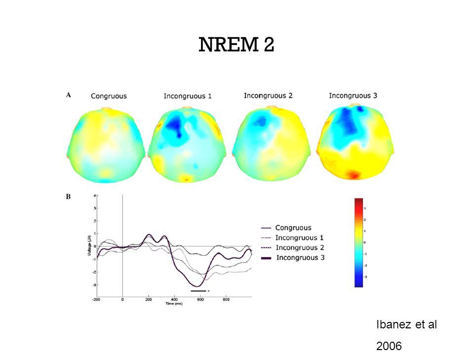NREM 2 Ibanez et al 2006
