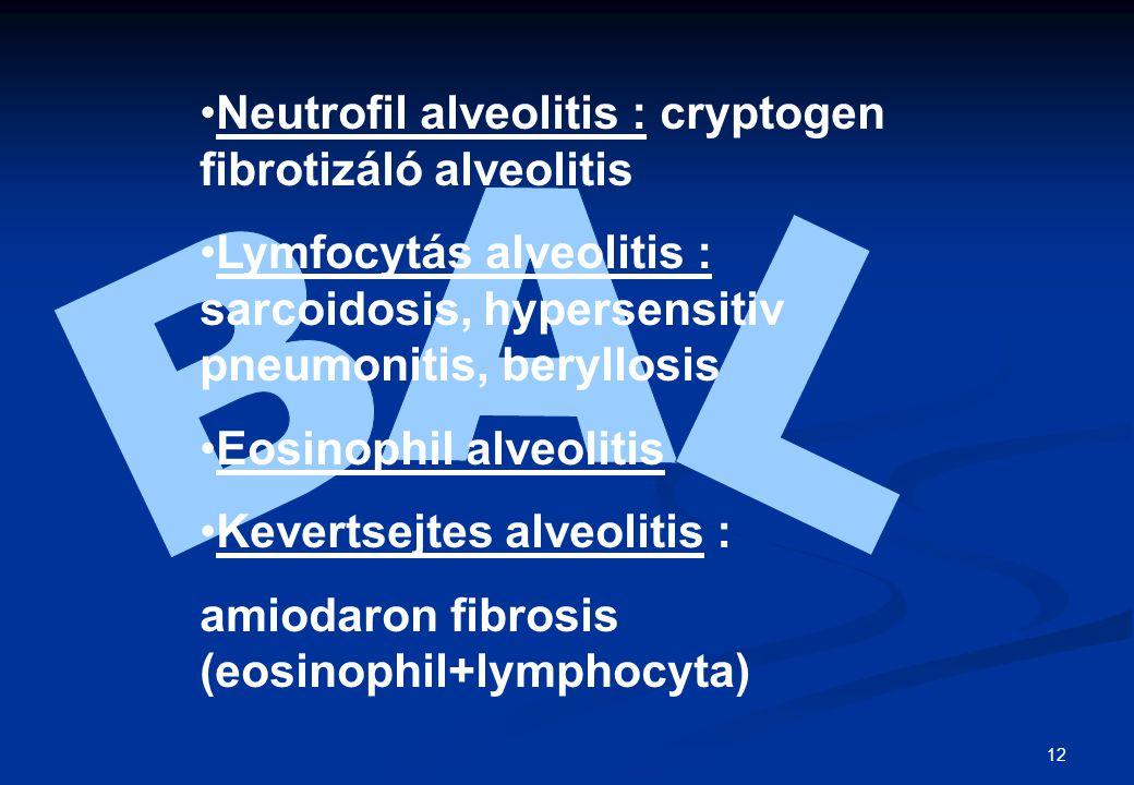 12 Neutrofil alveolitis : cryptogen fibrotizáló alveolitis Lymfocytás alveolitis : sarcoidosis, hypersensitiv pneumonitis, beryllosis Eosinophil alveo